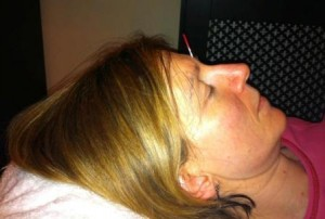 acupuncture stress treatment