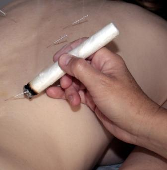 moxibustion at essex acupuncture